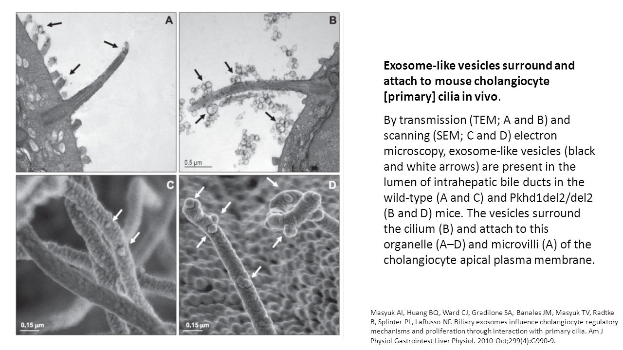 Exosome-like vesicles surround and attach to mouse cholangiocyte [primary] cilia in vivo.